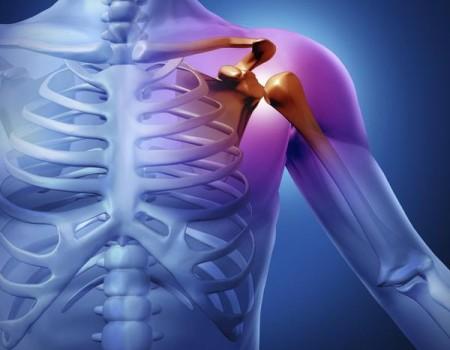 Εξάρθρημα του ώμου/ Shoulder dislocation