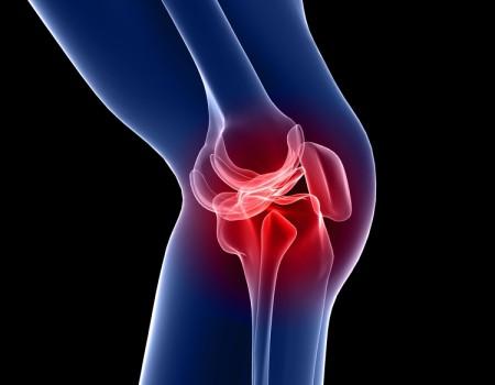 Ρήξη μηνίσκου σε ασθενείς άνω των 50 ετών και Οστεαρθριτικό γόνατο