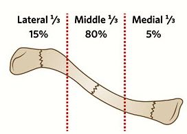 FRACTURE CLASSIFICATIONS
