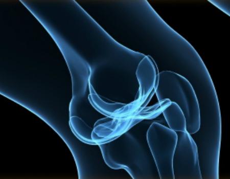 Εξατομικευμένη Ολική αρθροπλαστική γόνατος – My knee